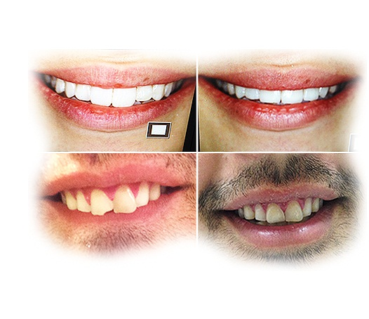 Best Dental Clinic in Punjab