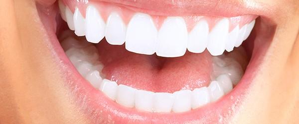 straight-teeth-600x250