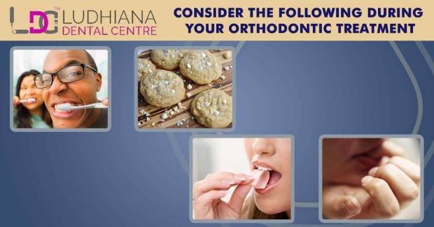 Consider The Following During Your Orthodontic Treatment