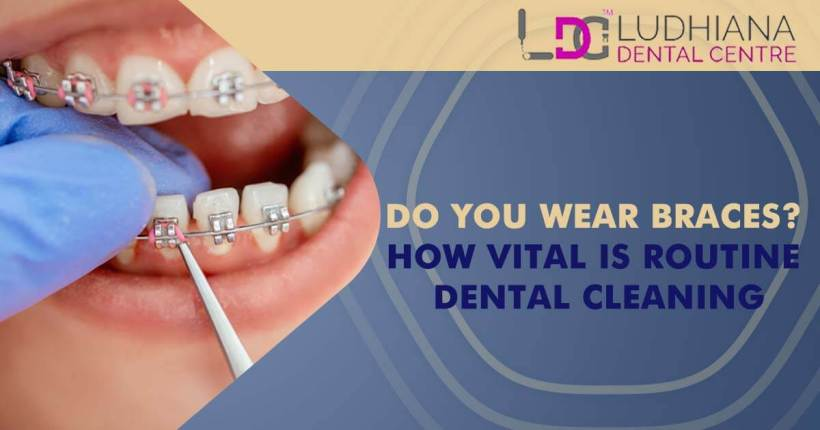 Do You Wear Braces? How Vital Is Routine Dental Cleaning