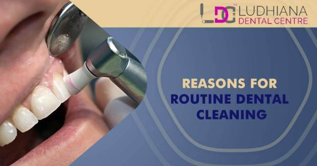 Reasons For Routine Dental Cleaning