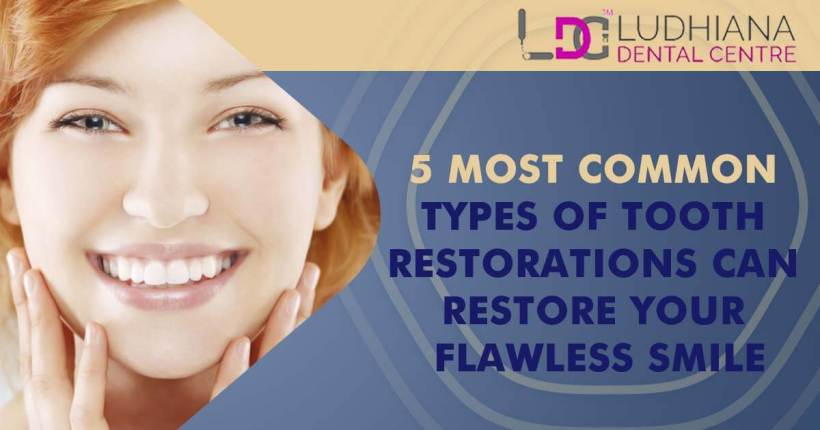 5 Most Common Types Of Tooth Restorations Can Restore Your Flawless Smile