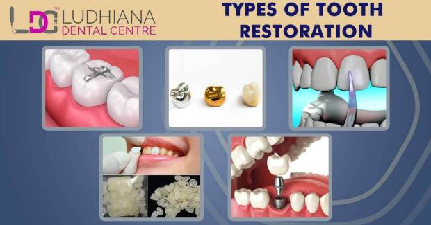 Types of tooth restoration