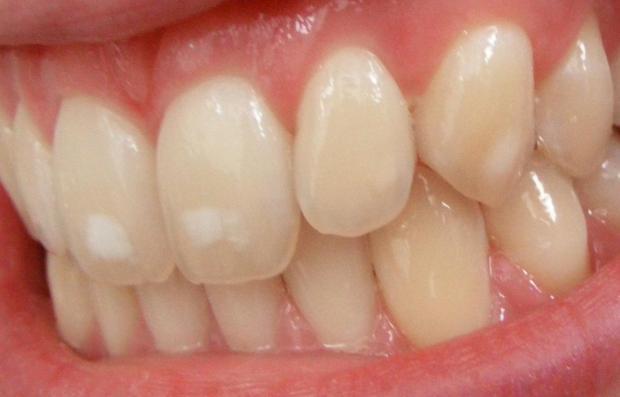 dental-fluorosis-br-image-credit-matthew-ferguson-57-2015-br